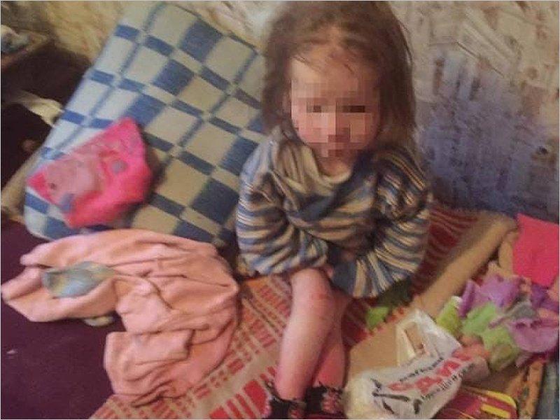 В Брянске приёмные родители морили голодом 7-летнего ребенка. К расследованию подключилась прокуратура