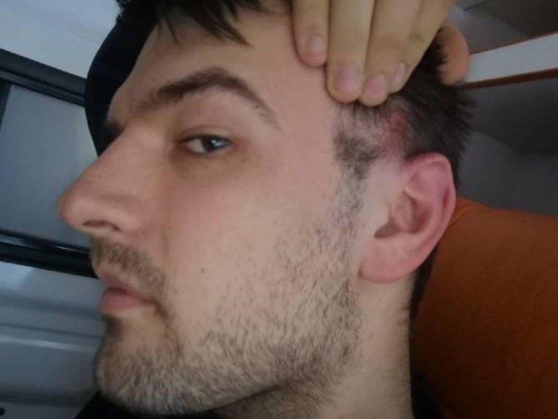 В Брянске прохожий получил ранение в голову из травмата